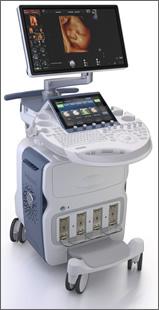 リアルタイム4D超音波診断装置(VOLUTION E10)を導入